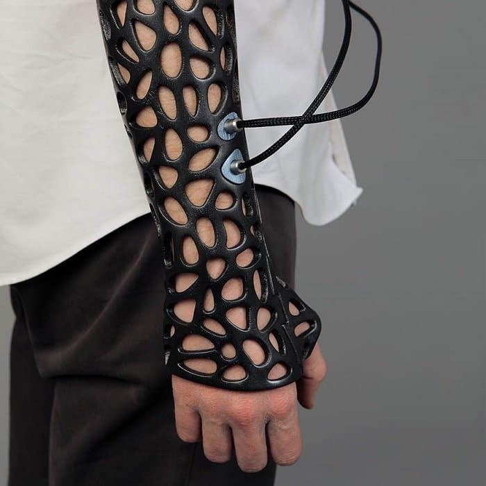 3d-printed-cast-deniz-karasahian arm