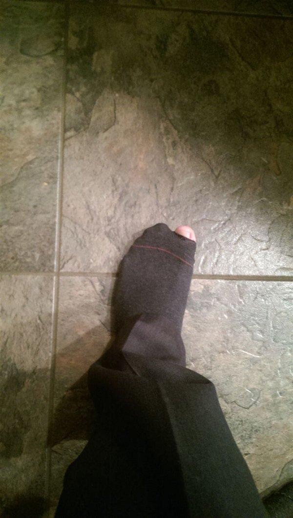 toe impromptu appearance