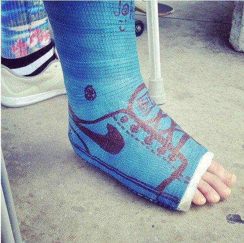 blue sneaker cast
