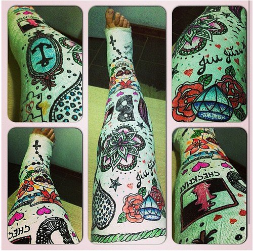 leg cast tattoos