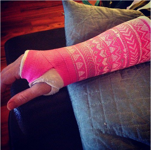 pink patterned cast