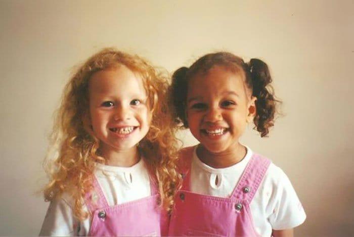 black-white-skin-twin-sisters