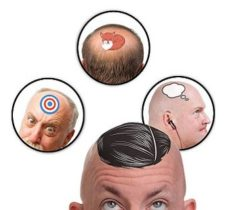 Bald Head Temporary Tattoos