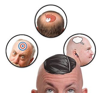 Bald Head Temporary Tattoos