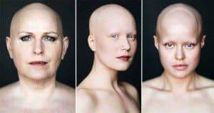 Photographer Captures Beauty Of Bald Women
