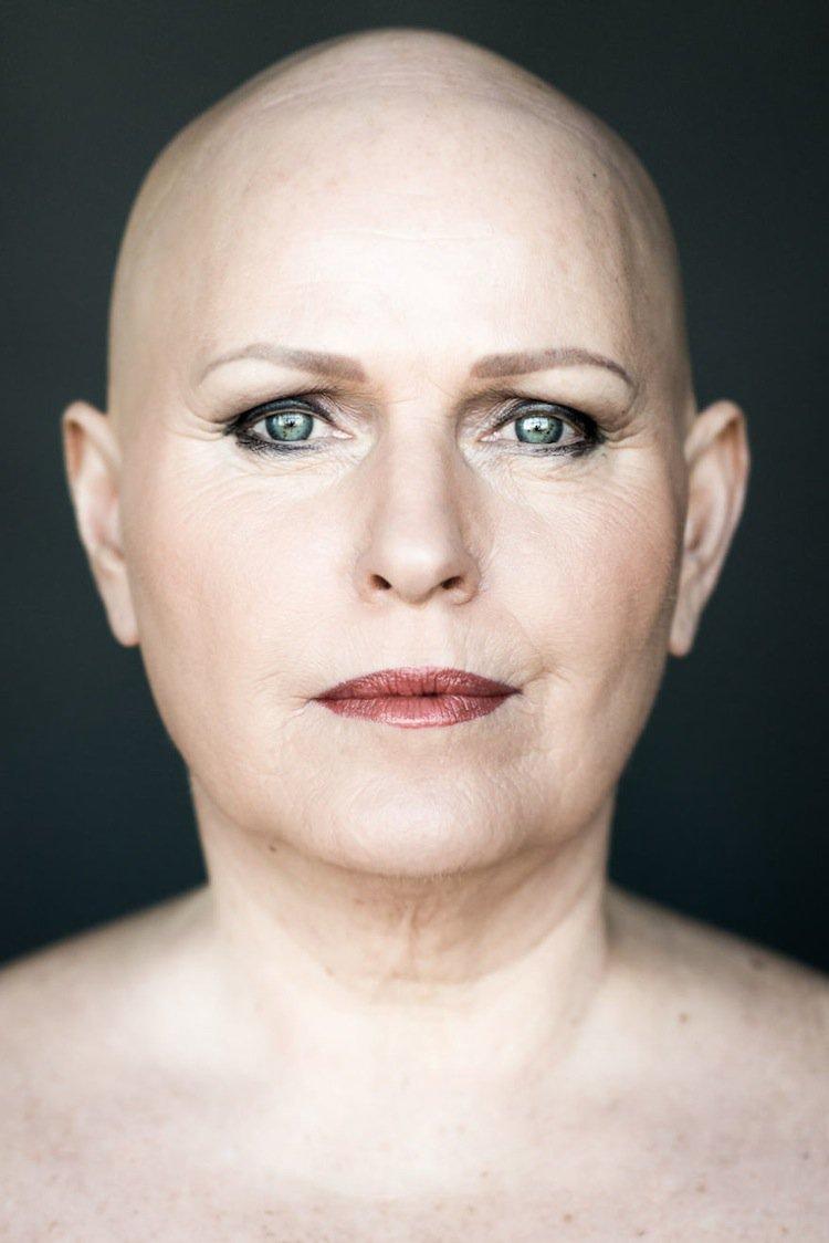 Bald women pics