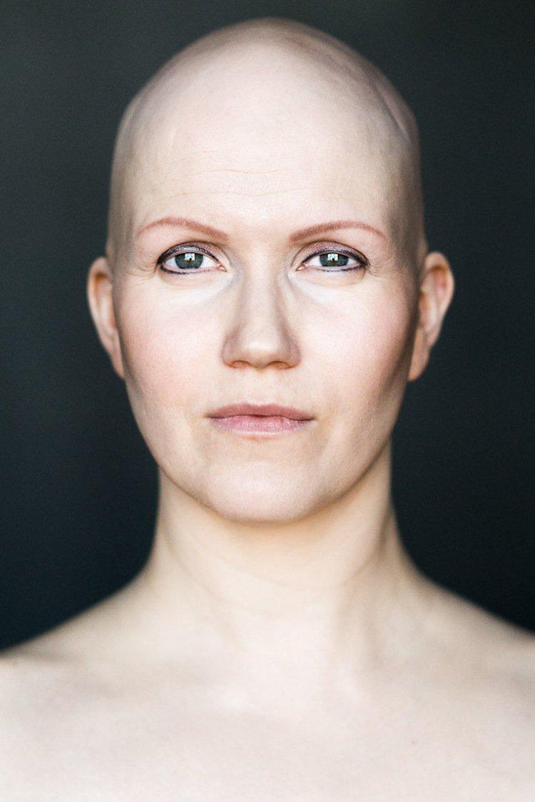 sigga-bald-three