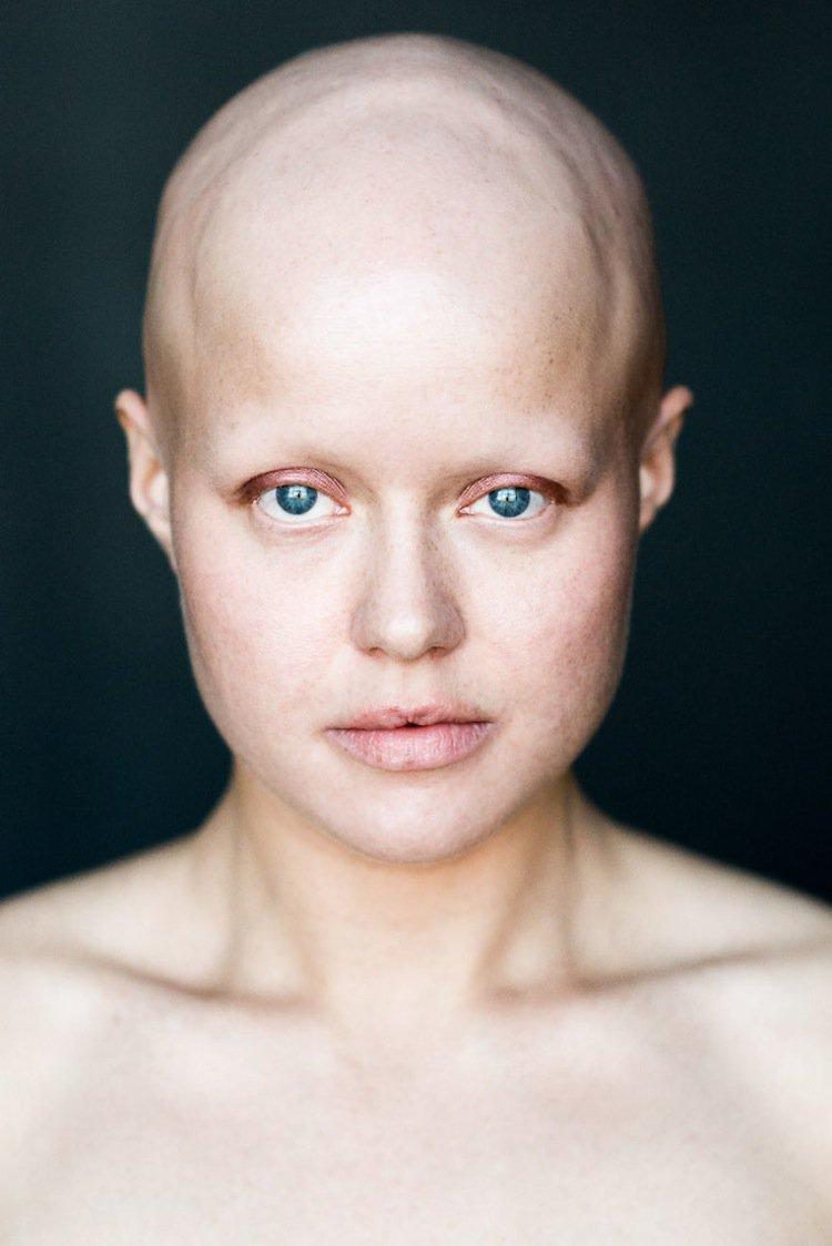 sigga-bald-two