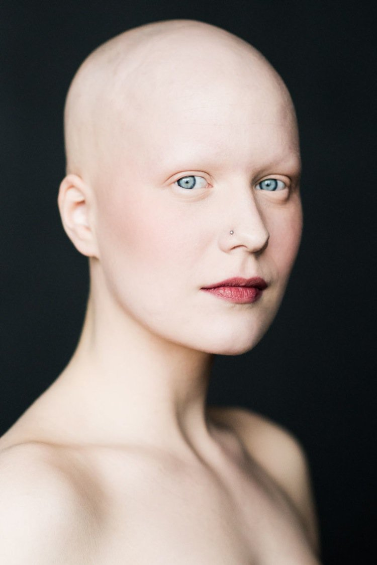 Photographer Sigga Ella Captures The Beauty Of Bald Women