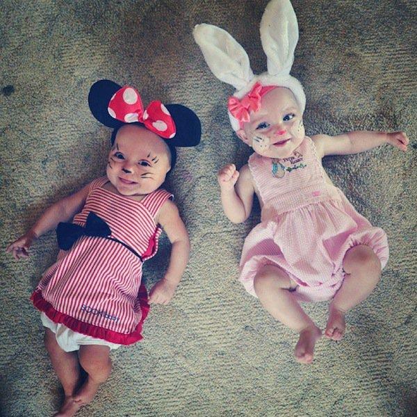 twins-dress