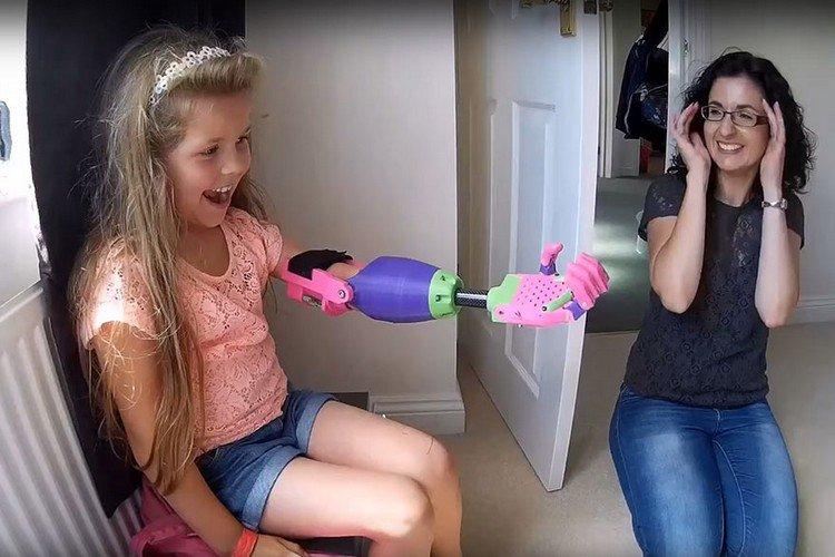 happy girl woman prosthetic arm