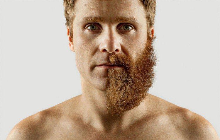 man half beard
