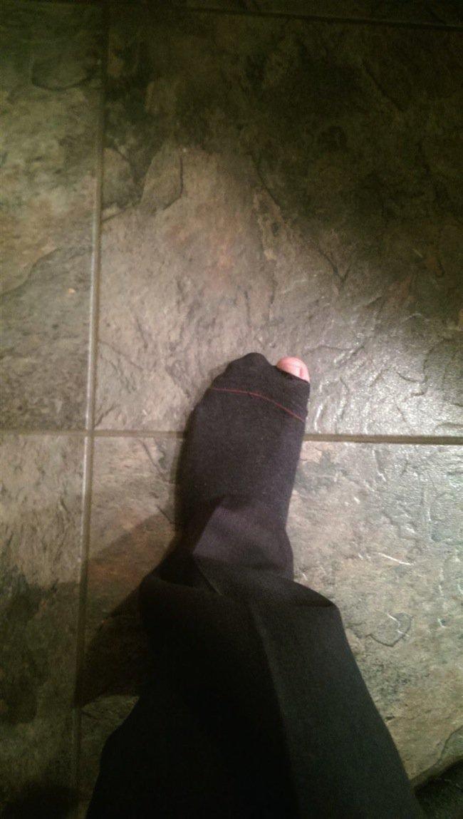 work-toe