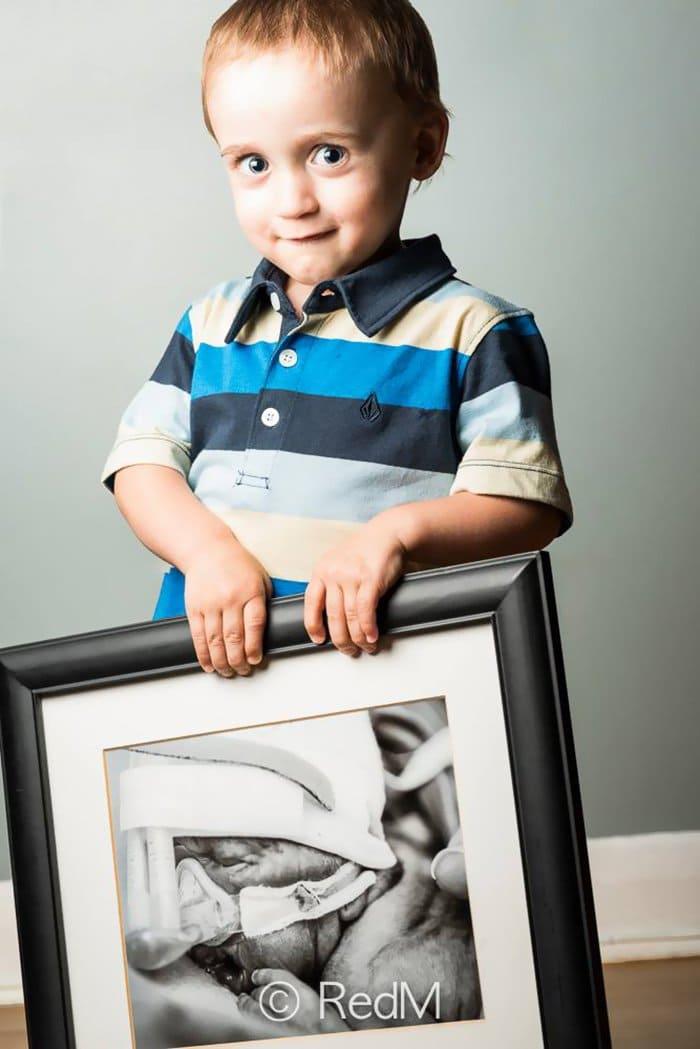 premature-baby-portraits-zachary