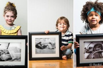 Before-And-After Photos Premature Babies