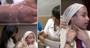 Dr. Basma Hameed Cosmetic Tattoo Scarring