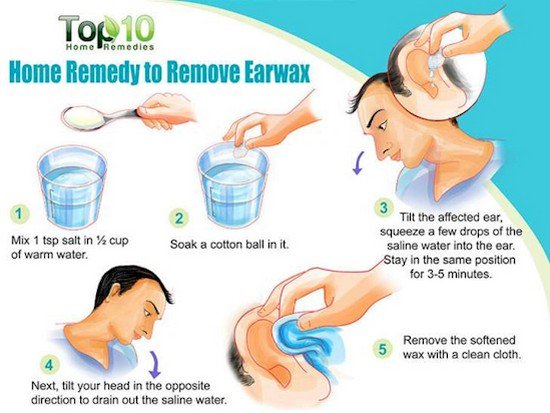 After you read this you will never use cotton swabs to clean your ear wax home remedy ccuart Choice Image
