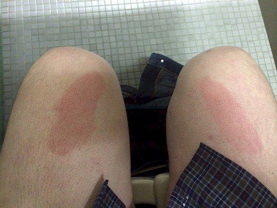 red toilet legs