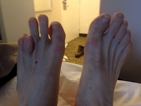 wtf-toes