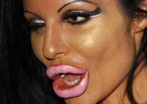 Huge Lips