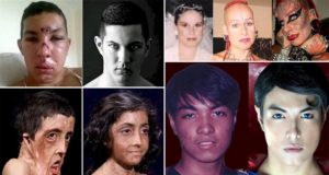 Unbelievable Physical Transformations