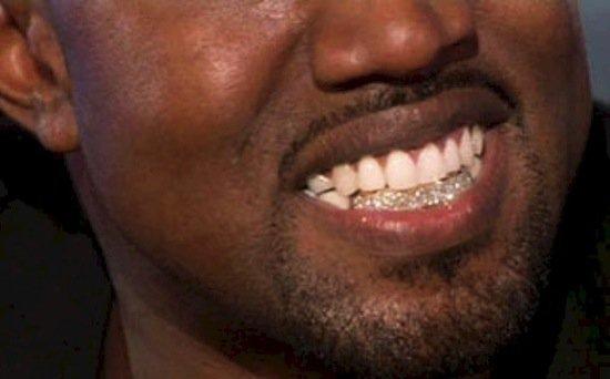 lavish-teeth