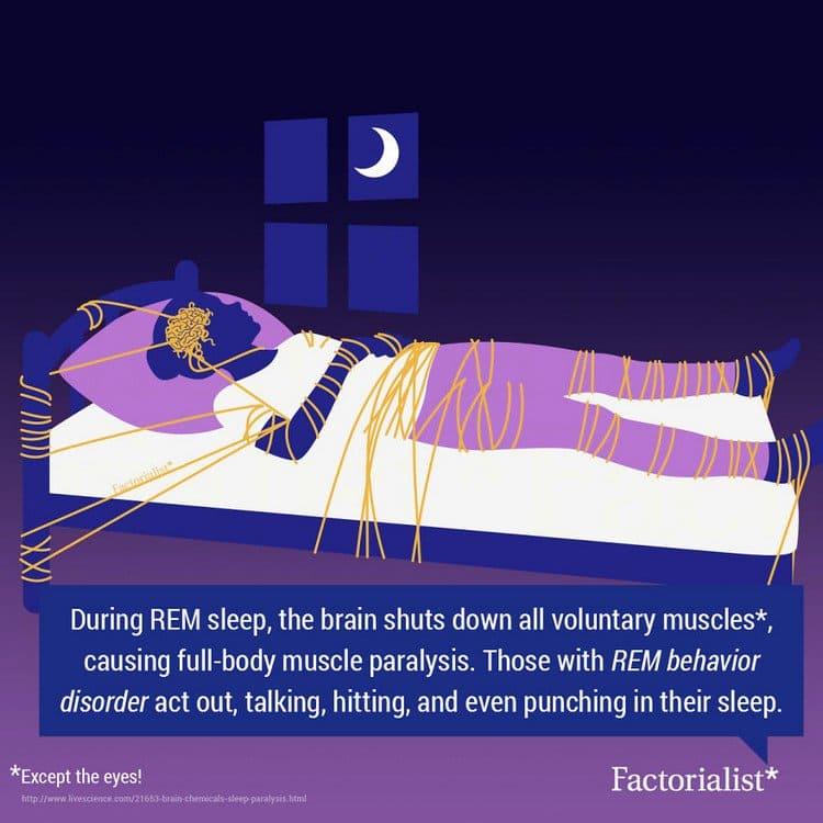 rem paralysis