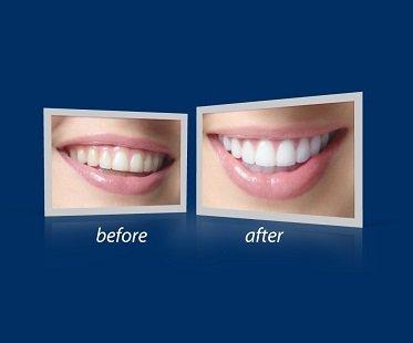 Teeth Whitening Accelerator kit pics