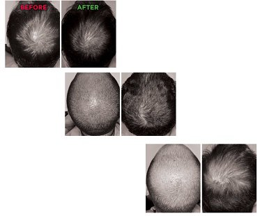 laser-hair-growth-system-before-after