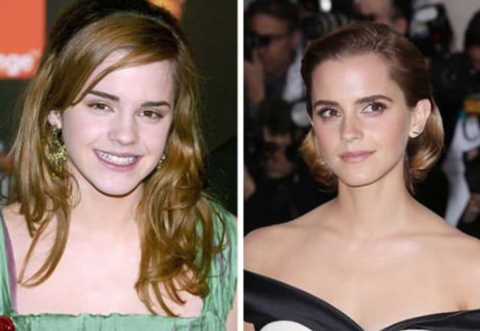 celebs-before-after-stylists-emma-watson