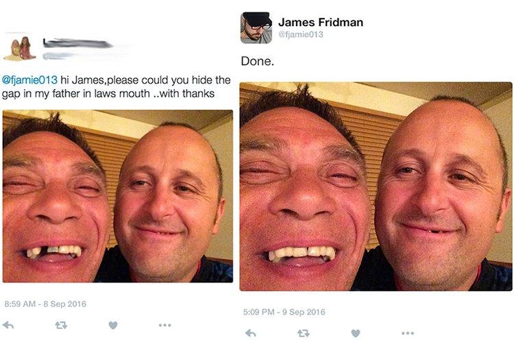 hide-the-gap-in-teeth-james-fridman