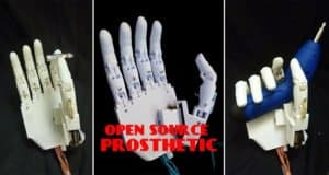 low-cost-diy-hand-prosthetic