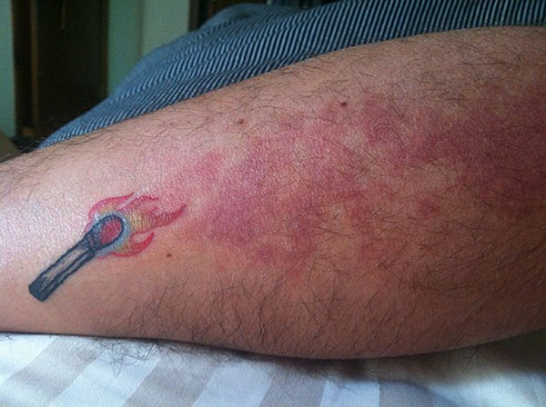 birthmark-tattoo-cover-ups-burning-matchstick