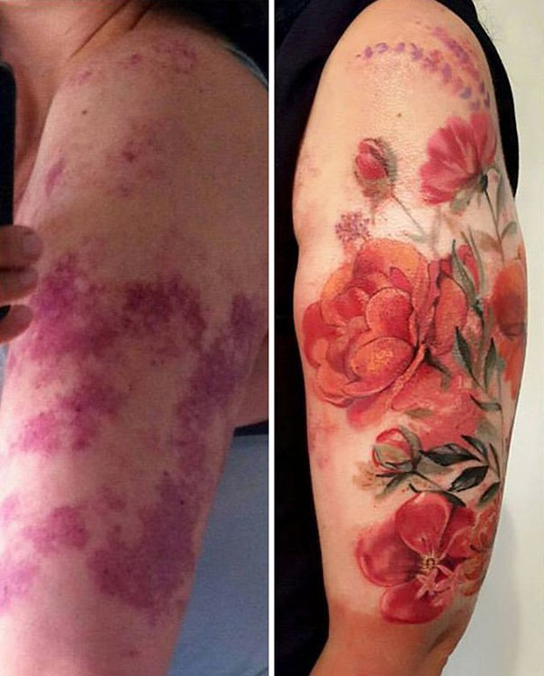 birthmark-tattoo-cover-ups-flower-port-wine