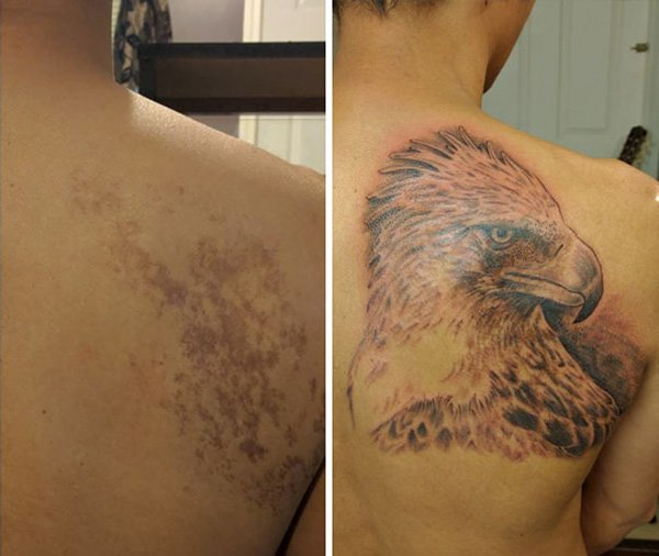 birthmark-tattoo-cover-ups-philippine-eagle