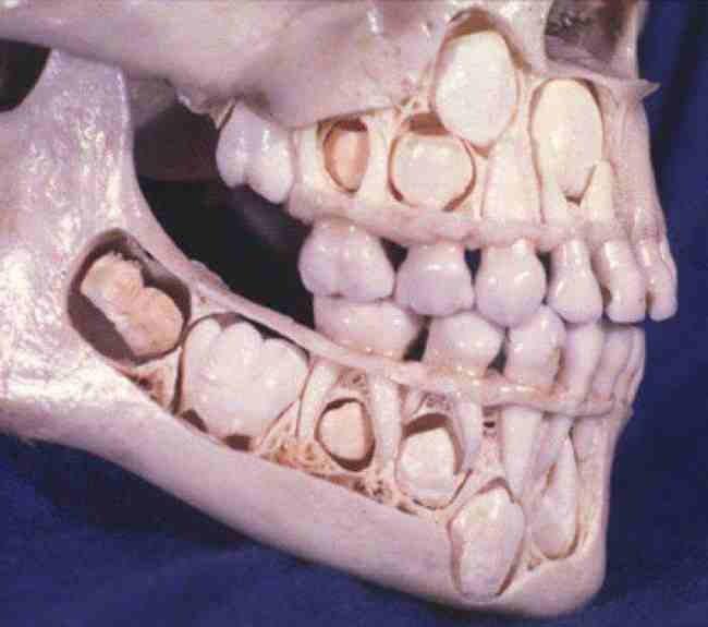 childs skull before losing baby teeth