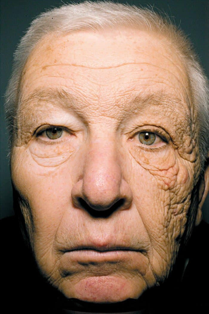 Pictures That Prove Time Changes Everything sun damage after 25 years
