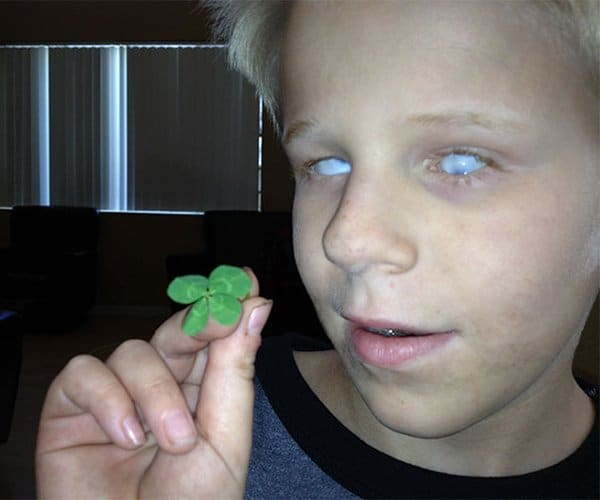 Rare Coincidences blind son finds four leaf clover