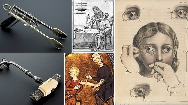 Freaky Surgical Procedures That You'll Be Glad Are No Longer In Use
