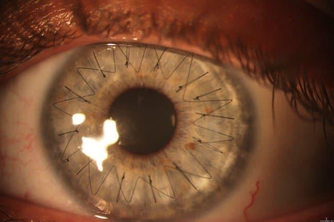 cornea-stitch