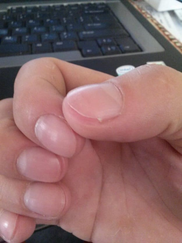 cutting-your-nail-too-short