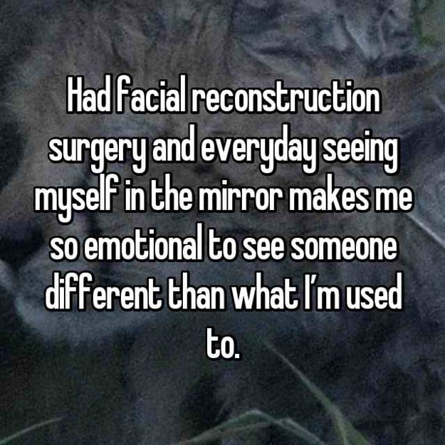 facial-reconstructions-made-me-look-different-on-the-mirror-reconstructive-surgery-stories