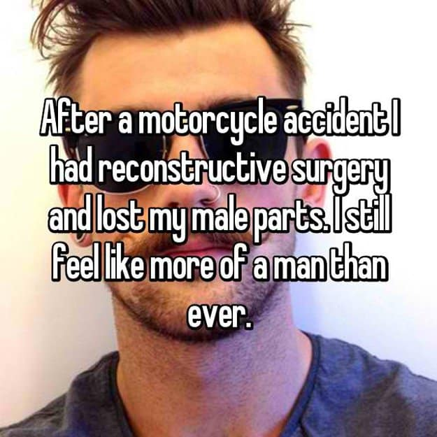 motor-accident-made-me-lose-my-male-parts-reconstructive-surgery-stories