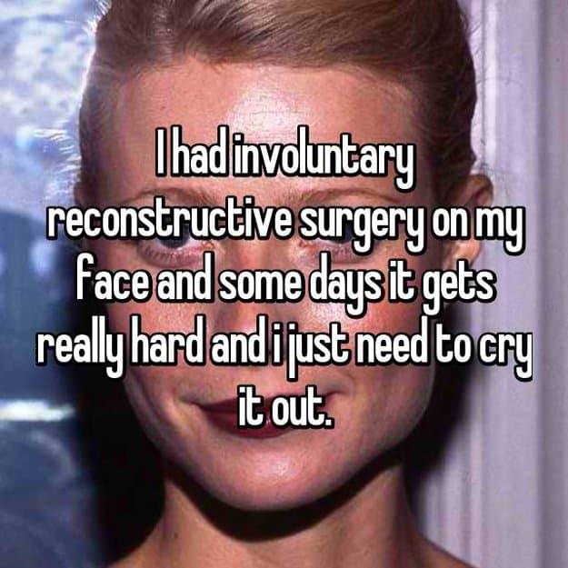 reconstructive-surgery-on-face-is-hard-it-makes-me-cry