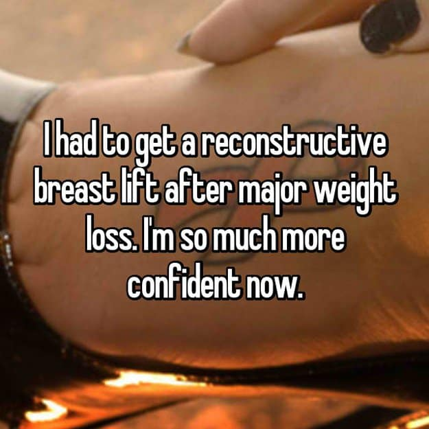 reconstructive-surgery-stories-breast-lift-after-weight-loss
