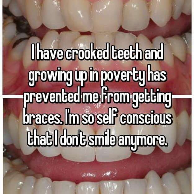 self-conscious-for-having-crooked-teeth