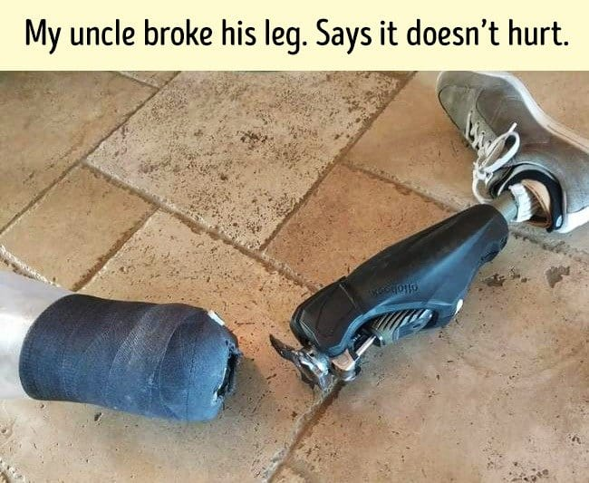 uncle_broke_prosthetic_leg_dark_humor