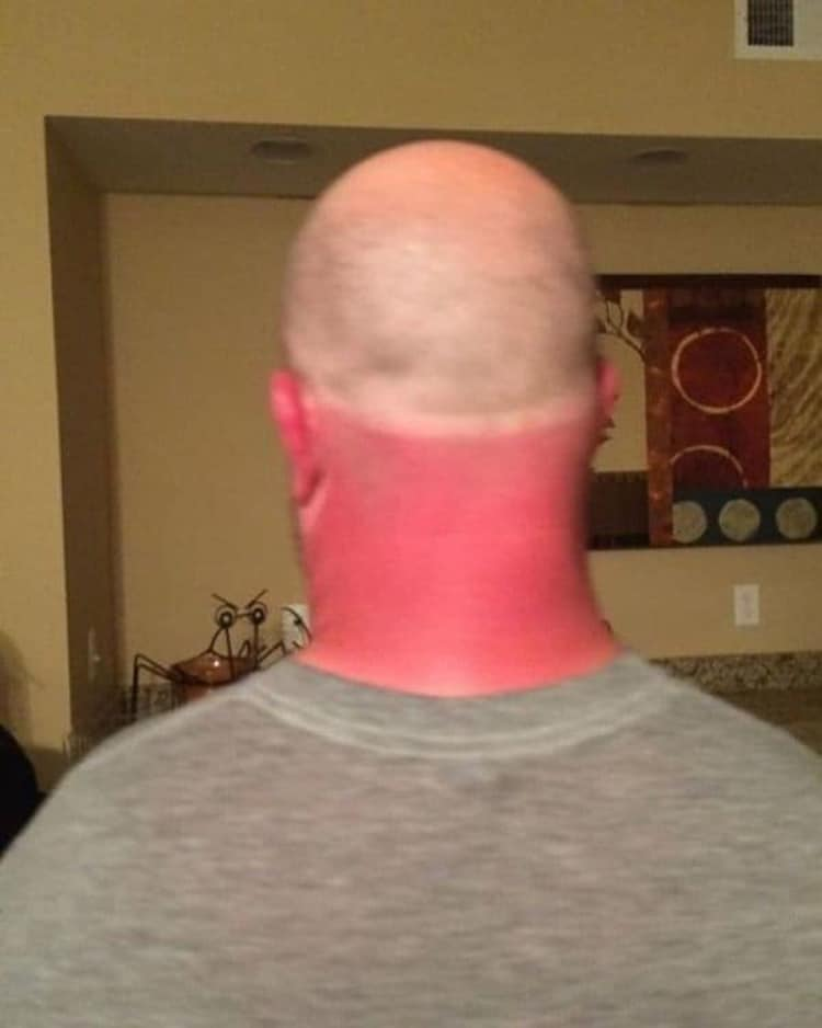 bald-head-sunburn-remarkable-photos