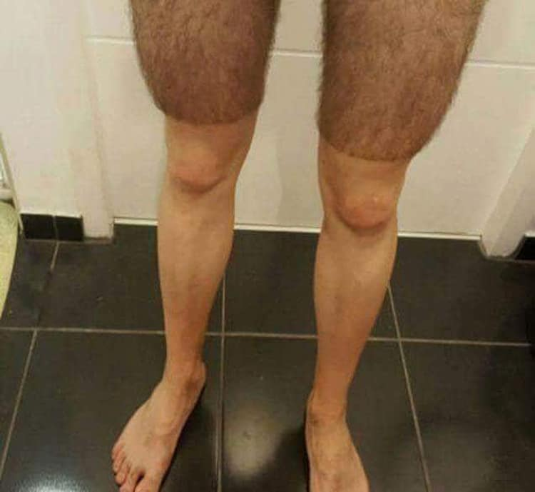 shaved-leg-hair-luckless-people