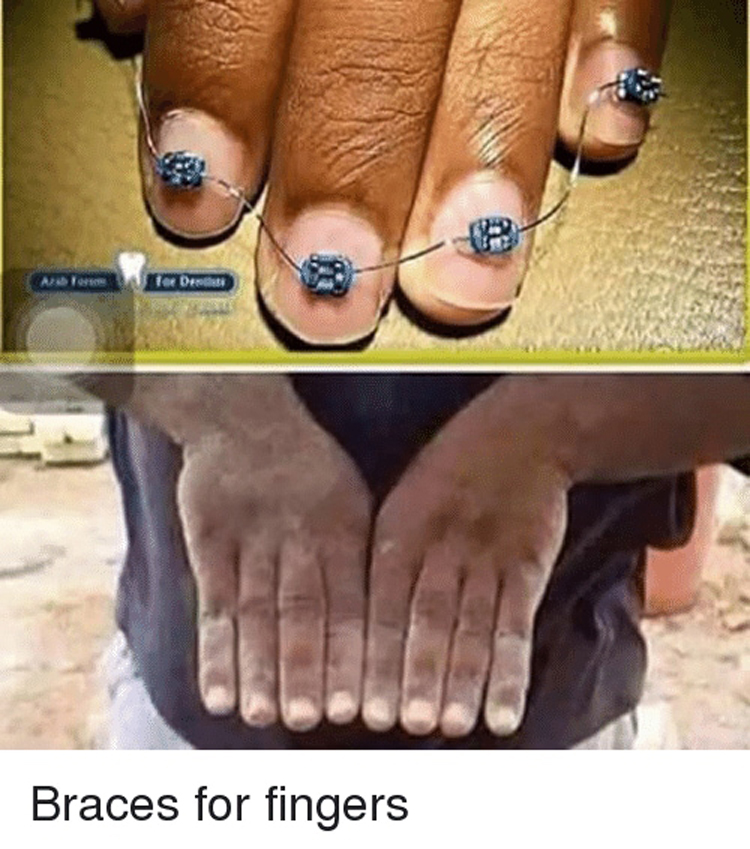 finger-braces-hilariously-atrocious-things